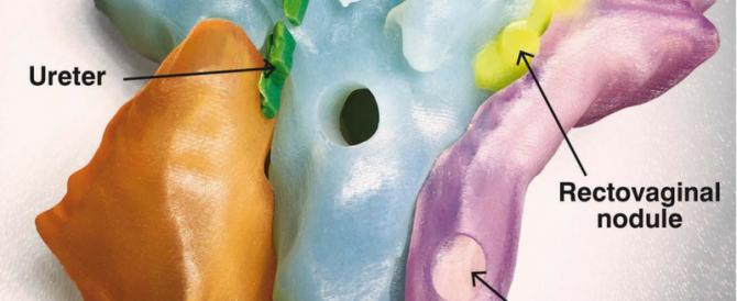 Τρισδιάστατη εκτύπωση της ενδομητρίωσης βοηθά τους χειρουργούς