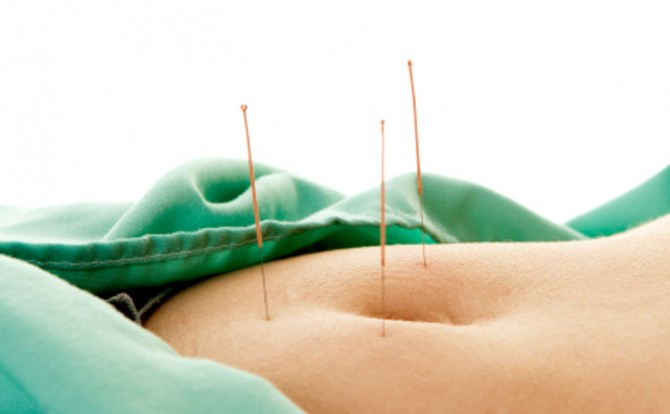 Acupuncture found to be effective adjunctive treatment for endometriosis-related pain