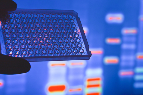 Mutations in cancer-related genes may be origin of endometriosis, study suggests