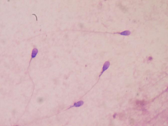 Κατάψυξη σπέρματος: μειώνει την επιτυχία της εξωσωματικής γονιμοποίησης;